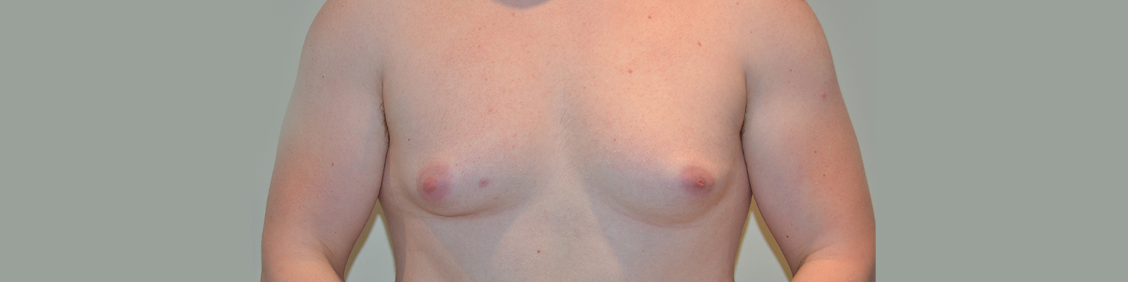 Male Breast Surgery, Essex